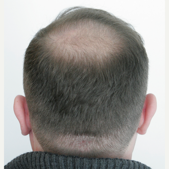 25-34 year old man treated with FUE Hair Transplant after 3258334