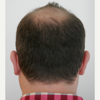 25-34 year old man treated with FUE Hair Transplant before 3258334