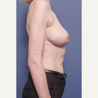 45-54 year old woman treated with Breast Reduction after 3734718