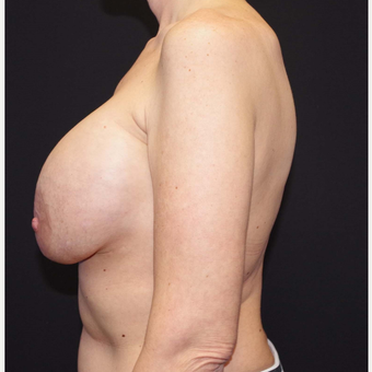 35-44 year old woman treated with Breast Implant Removal before 3741653