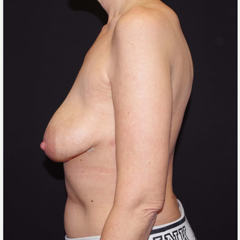 35-44 year old woman treated with Breast Implant Removal after 3741653
