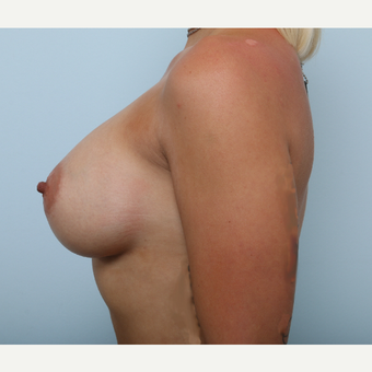 Breast Augmentation after 3345195