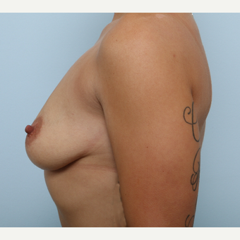 Breast Augmentation before 3345195
