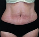 Panniculectomy after 2203954