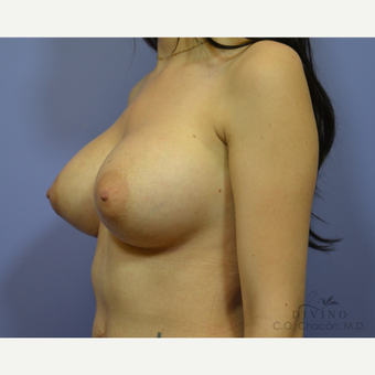 25-34 year old woman treated with Breast Implant Revision after 3415849