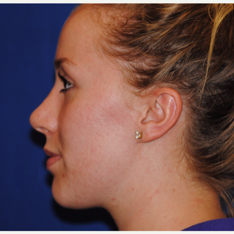 18-24 year old woman treated with Rhinoplasty after 3646932