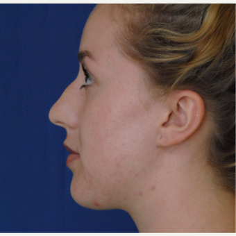 18-24 year old woman treated with Rhinoplasty before 3646932