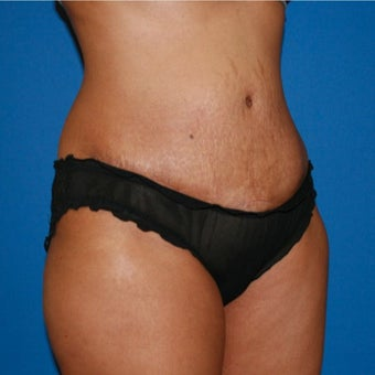 Tummy Tuck after 1754254