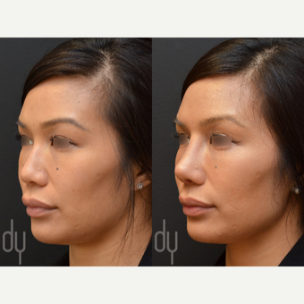 25-34 year old woman treated with Asian Rhinoplasty before 3477449