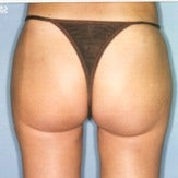 25-34 year old woman treated with Liposuction 1747462