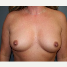 25-34 year old woman treated with Breast Implants before 3303883