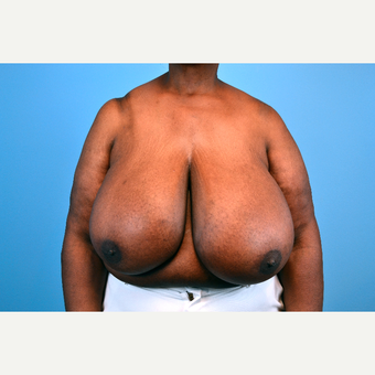 55-64 year old woman treated with Breast Reduction before 2998941