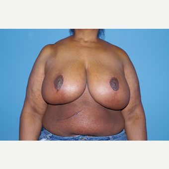 55-64 year old woman treated with Breast Reduction after 2998941