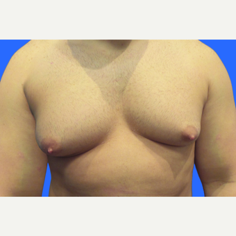 29 year old male, Gynecomastia before 3147091
