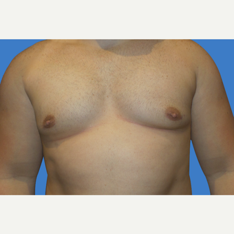 29 year old male, Gynecomastia after 3147091