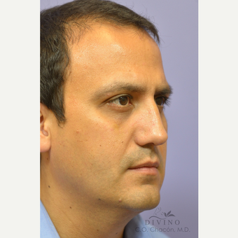 35-44 year old man treated with Rhinoplasty after 3391916