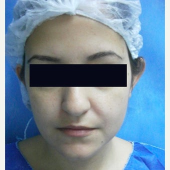 25-34 year old woman treated with Ear Surgery