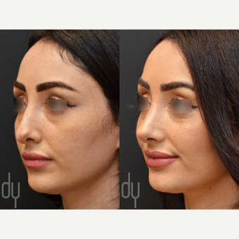 Revision Rhinoplasty before 3116241