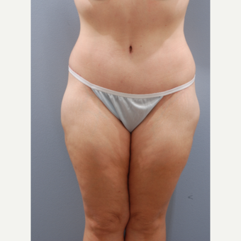 45-54 year old woman treated with Tummy Tuck after 3603911
