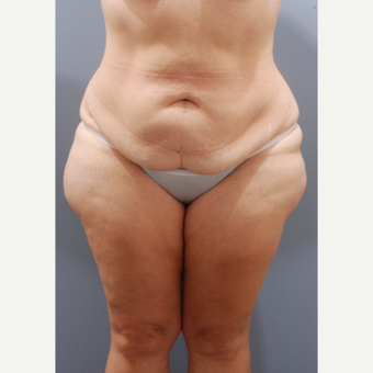 45-54 year old woman treated with Tummy Tuck before 3603911