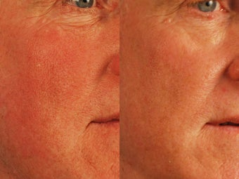 Male treated for Redness and Pore Size after 1523520