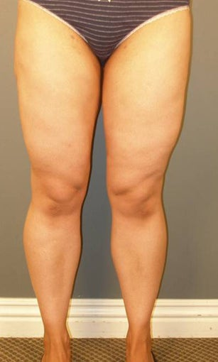 Tumescent Liposuction under local anesthesia. after 403765