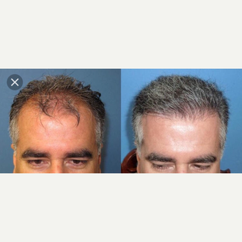 45-54 year old man treated with Hair Transplant before 3745477