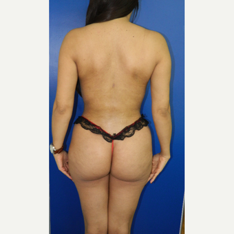 25-34 year old woman treated with Liposuction after 3097162