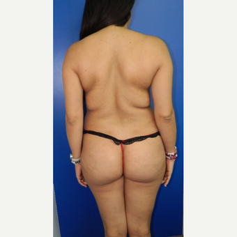25-34 year old woman treated with Liposuction before 3097162