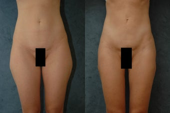 Liposuction on hips, thighs, and buttocks before 55859