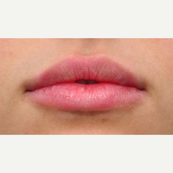 25-34 year old woman treated with Lip Augmentation after 3122359