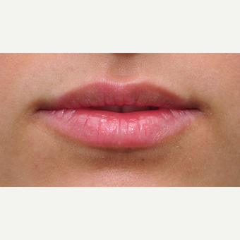 25-34 year old woman treated with Lip Augmentation before 3122359