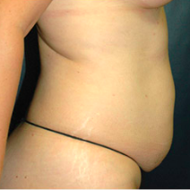 42 year old woman treated with Tummy Tuck before 3578414