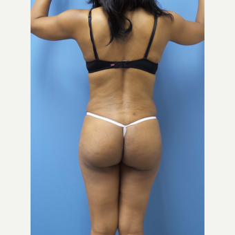 45-54 year old woman treated with Brazilian Butt Lift after 3371291