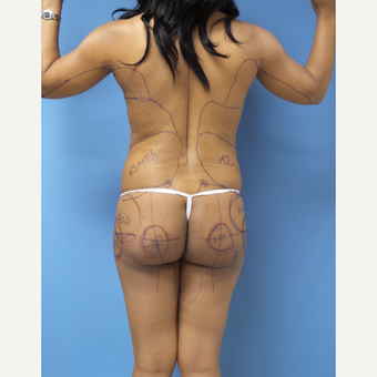45-54 year old woman treated with Brazilian Butt Lift before 3371291
