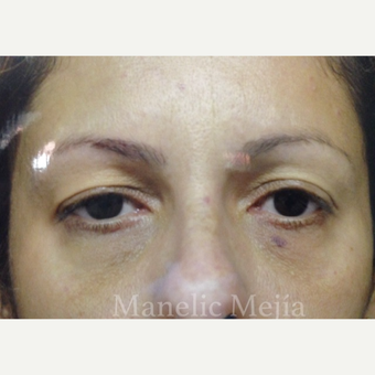 25-34 year old woman treated with Eye Bags Treatment before 3647473