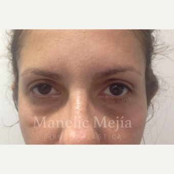 25-34 year old woman treated with Eye Bags Treatment after 3647473