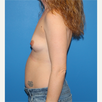 35-44 year old woman treated with Breast Augmentation before 3281391