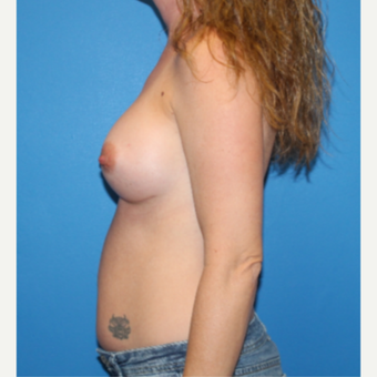 35-44 year old woman treated with Breast Augmentation after 3281391