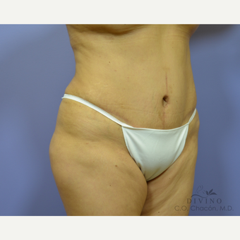 45-54 year old woman treated with Tummy Tuck after 3422029