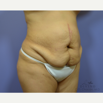 45-54 year old woman treated with Tummy Tuck before 3422029