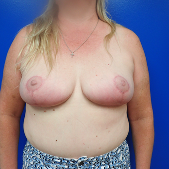 55-64 year old woman treated with Breast Reduction after 3330870