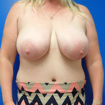 55-64 year old woman treated with Breast Reduction before 3330870
