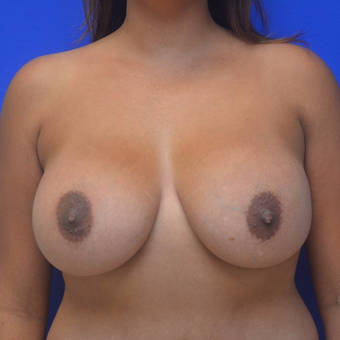 25-34 year old woman treated with Breast Augmentation after 3299285