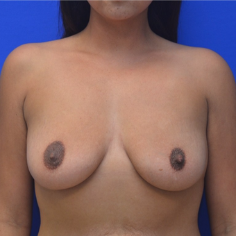 25-34 year old woman treated with Breast Augmentation before 3299285
