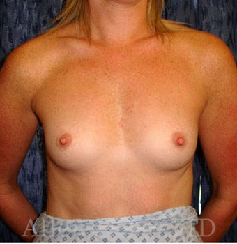 Bilateral Breast Augmentation - Pre- & 2 Years Post-op before 2255579