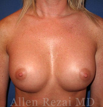 Bilateral Breast Augmentation - Pre- & 2 Years Post-op after 2255579