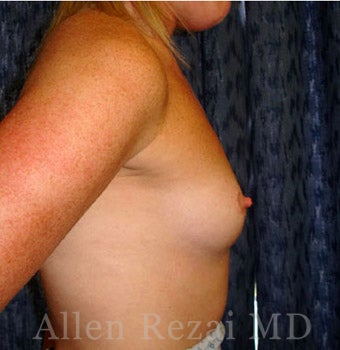 Bilateral Breast Augmentation - Pre- & 2 Years Post-op 2255579