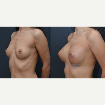 25-34 year old woman treated with Breast Implants before 3238798