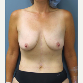 45-54 year old man treated with Breast Lift with Implants before 3475994